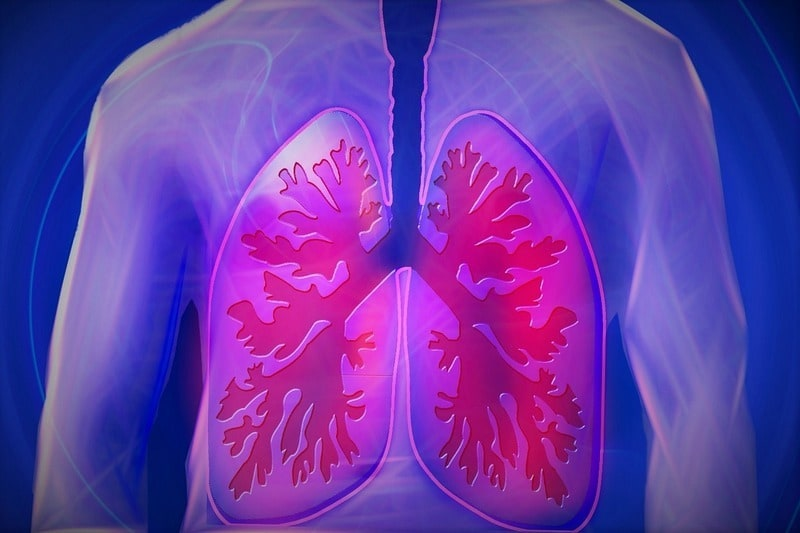 Lung disease