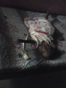 disabled little girl
